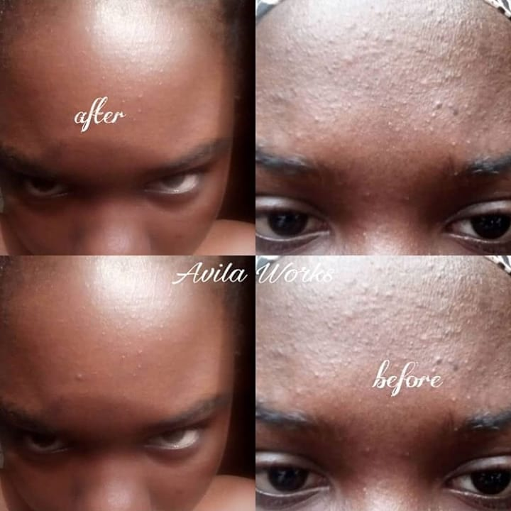 how to get rid of acne and black spots in three weeks