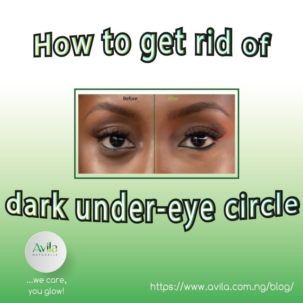 How to get rid of dark under-eye circle