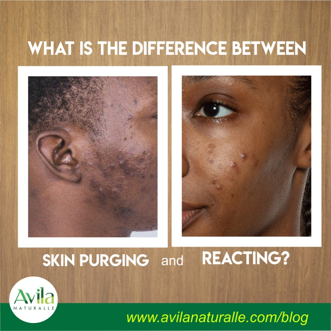 What is the difference between skin purging and reacting